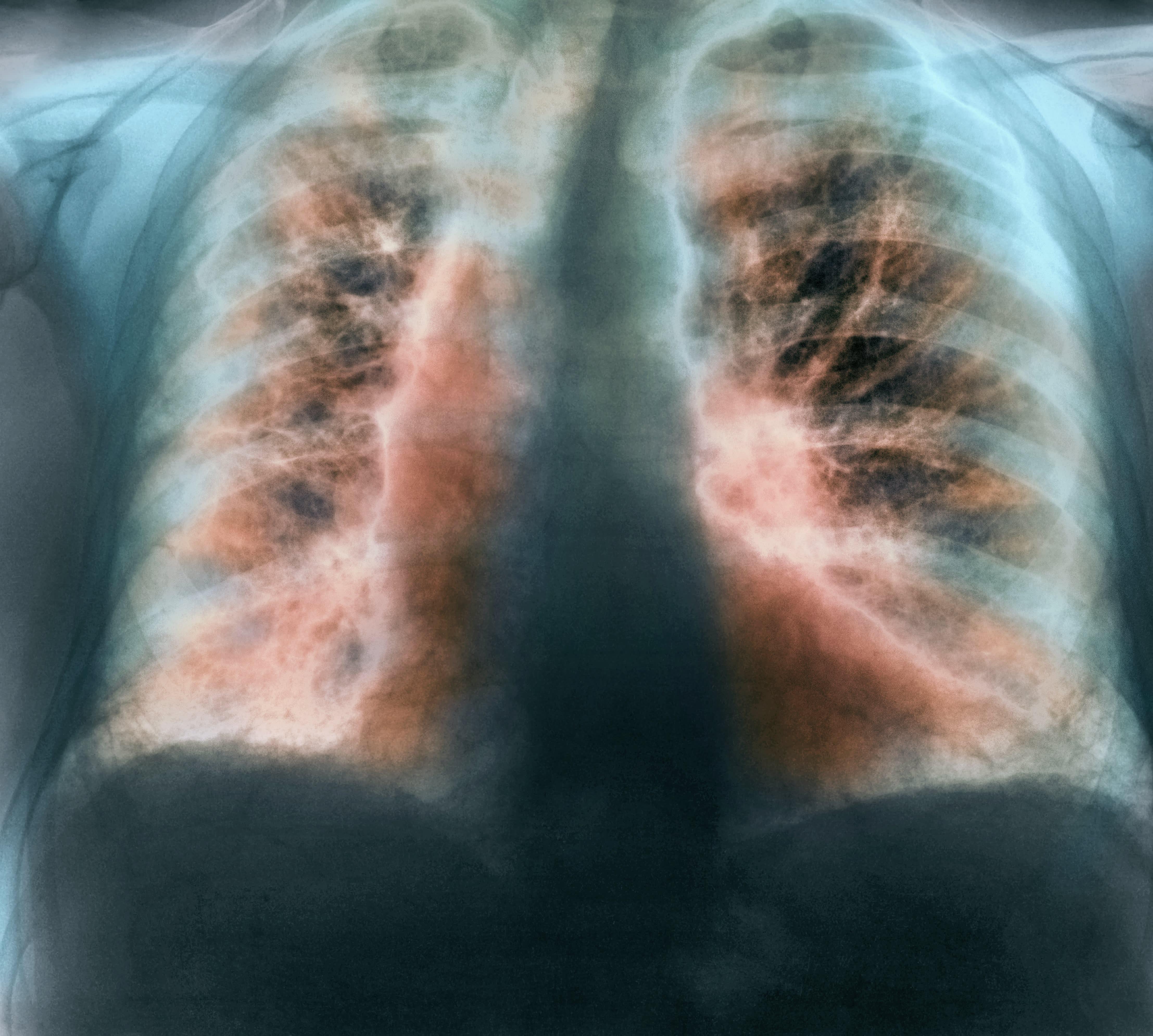 Biotech Fibrogen Soars On Positive Lung Disease Treatment