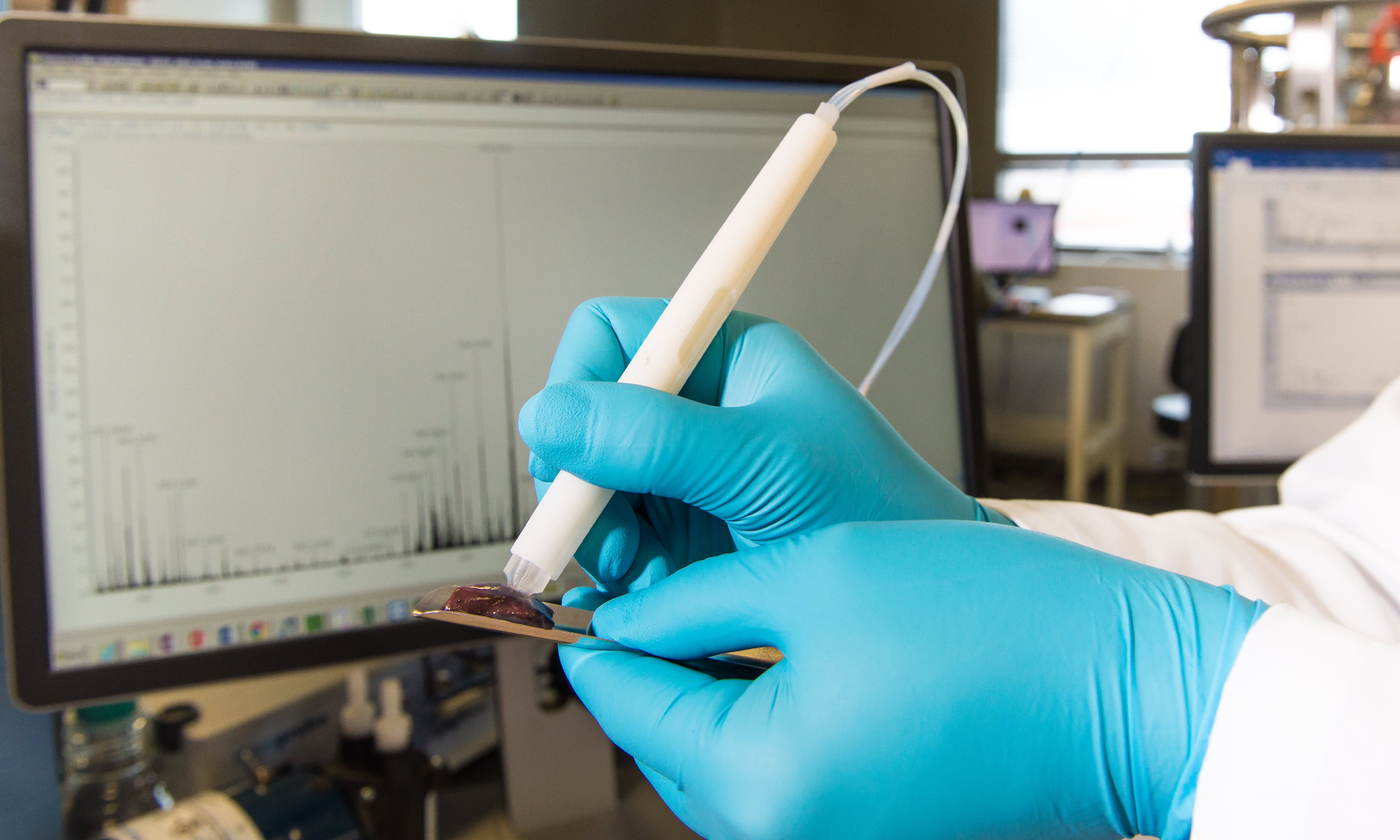 This pen will let surgeons detect cancer in seconds
