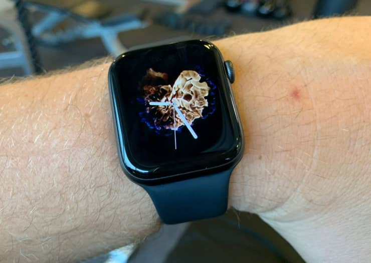 Patent suggests Apple Watch could become BP monitor