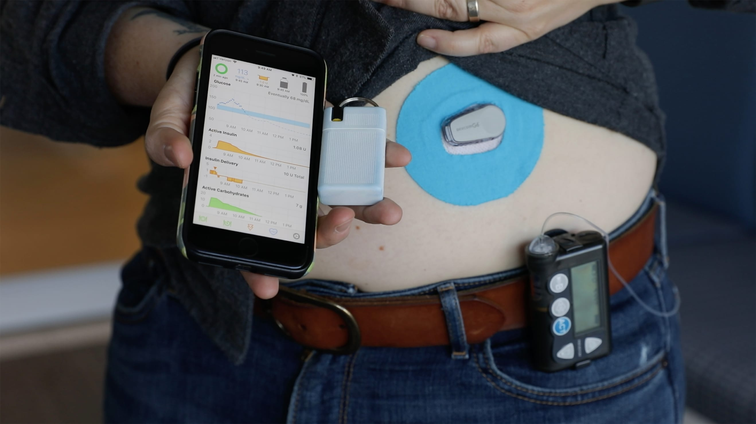 Hacking diabetes with this DIY artificial pancreas — review
