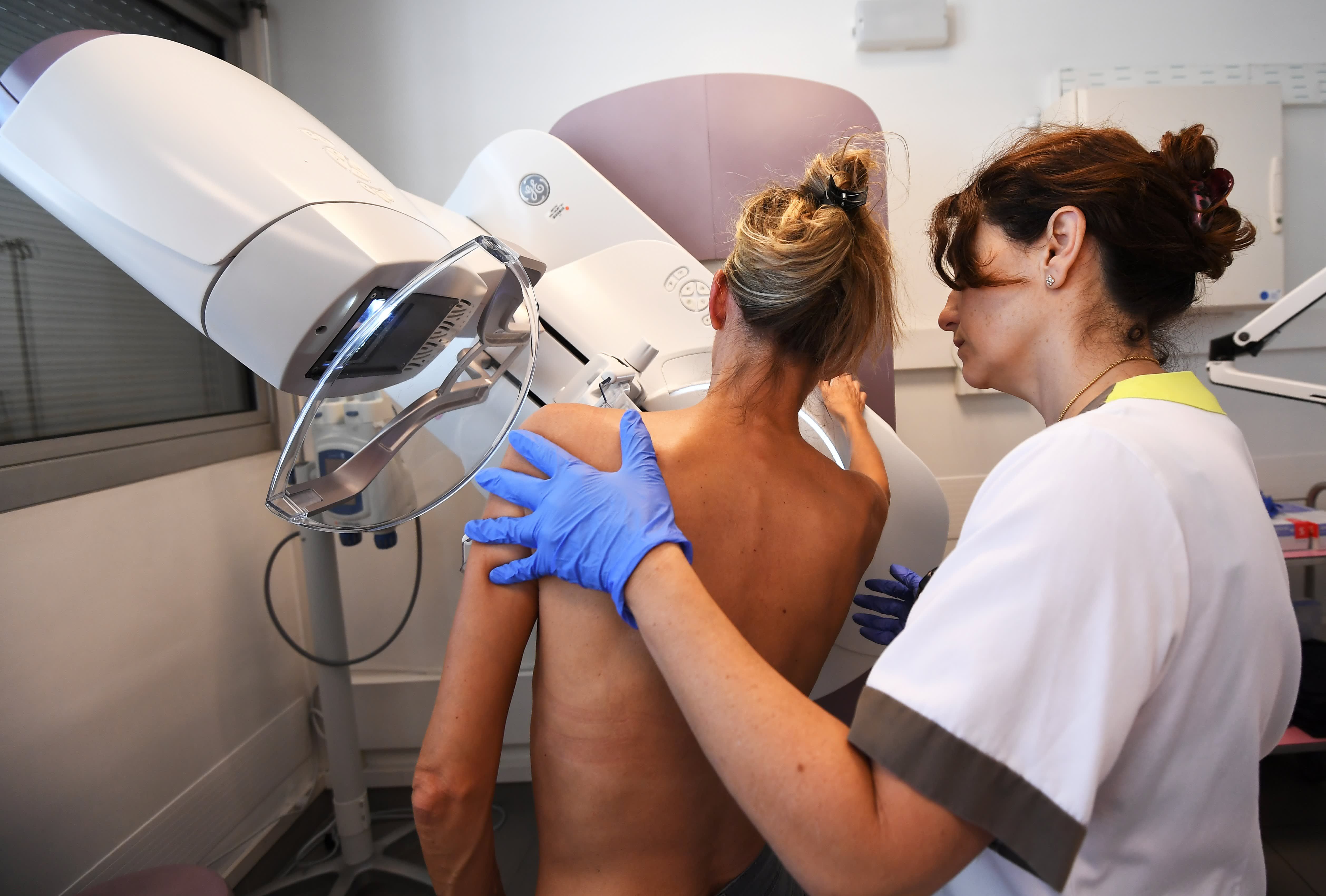 FDA proposes rule to notify women with dense breasts about increased cancer risk and imprecise mammograms