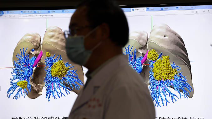 A doctor stands in front of two 3D-reconstructed lung models of a newly diagnosed coronavirus pneumonia patient during a 5G long-distance consultation at the First Affiliated Hospital of Kunming Medical University on March 2, 2020 in Kunming, Yunnan Provi