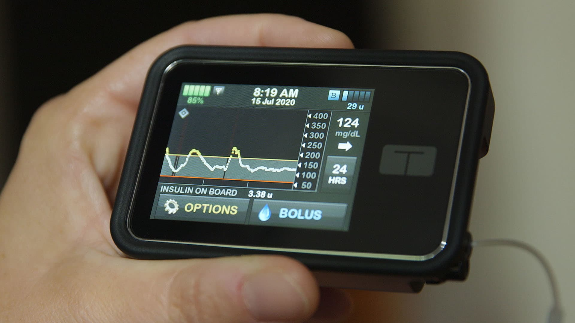 Technology has transformed the way we do almost everything, and it's finally innovating diabetes management. With the advancement in technologi