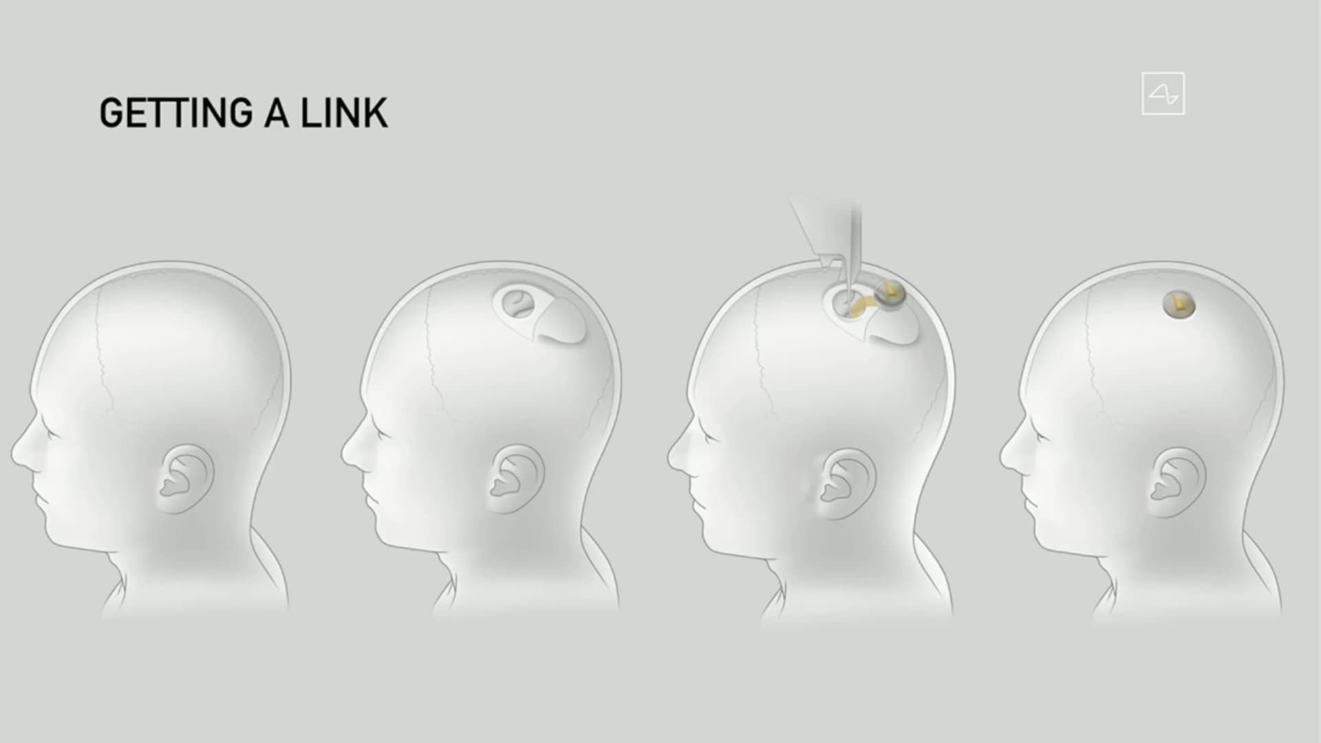Musk said the Neuralink device will be in