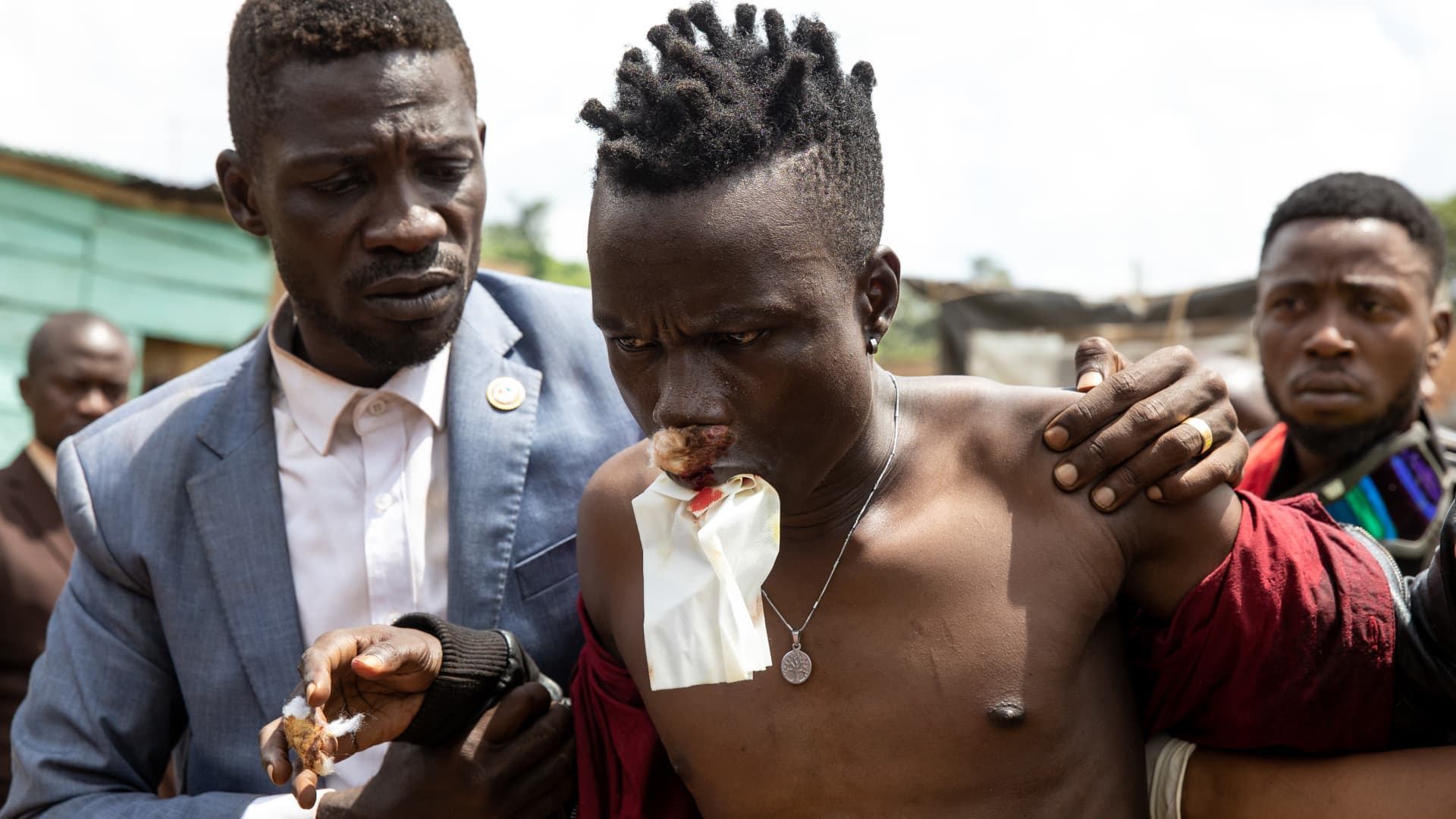 Bobi Wine takes an injured supporter into a medical center on December 01, 2020 in Jinja, Uganda.