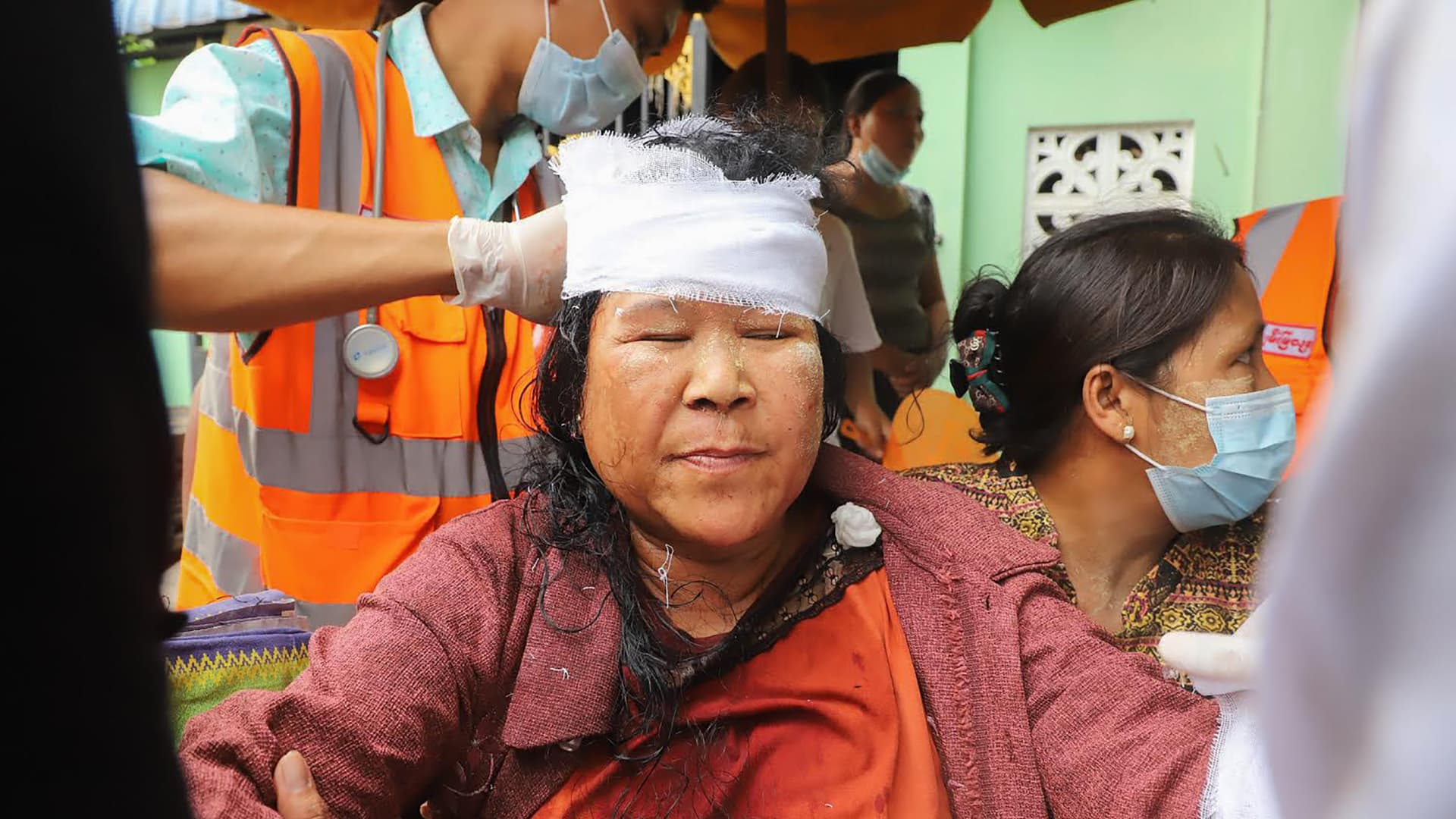 A protester has her head bandaged after being beaten by security forces during a demonstration against the military coup in Mandalay on February 20, 2021.